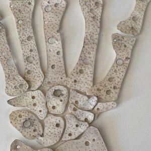 Andi Arnovitz osteoporosis hands copy